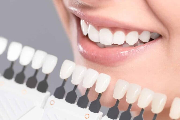 Zahnbleaching - Frau bei Abstimmung der Farbaufhellung Ihrer Zähne