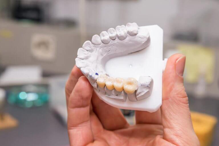 Zahnbrücke - Zahnmodell mit einer Zahnbrücke